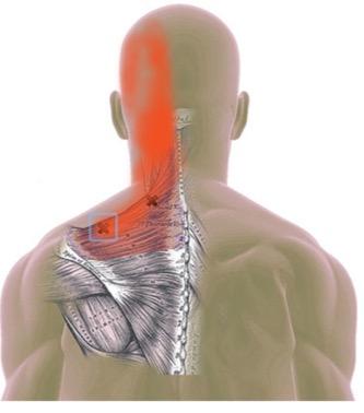 trị liệu đau mỏi vai gáy